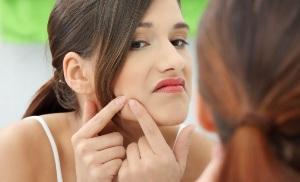 Качественный уход за проблемной кожей