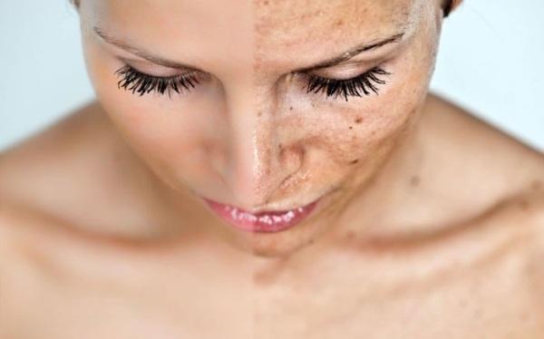 Нарушение пигментации кожи название
