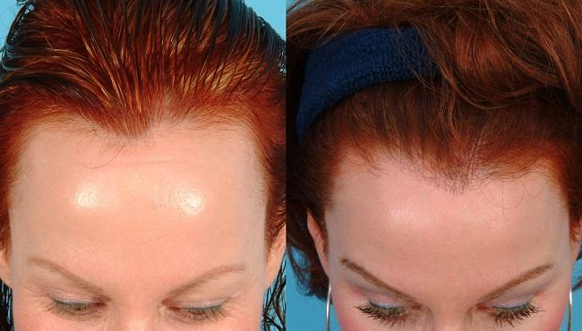 Пересадка волос – отзывы, методы и фото