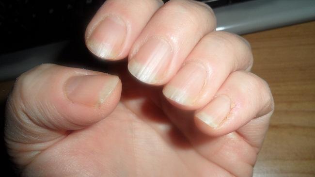 ногти неровные
